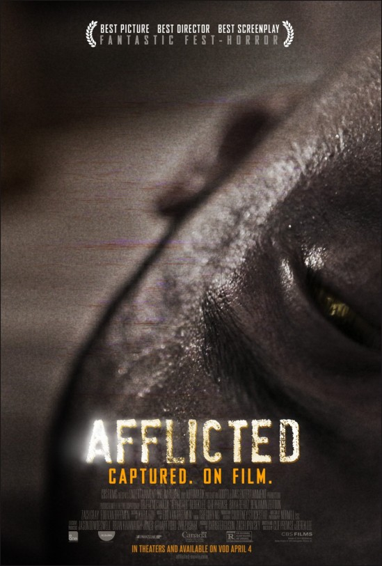 afflicted_ver2_xlg